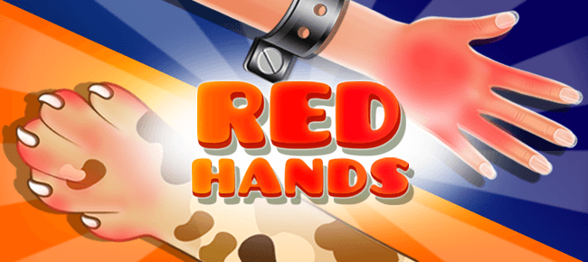 Red Hand Slap Game